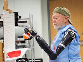 Zihinle hareket eden protez kol geli�tirildi
